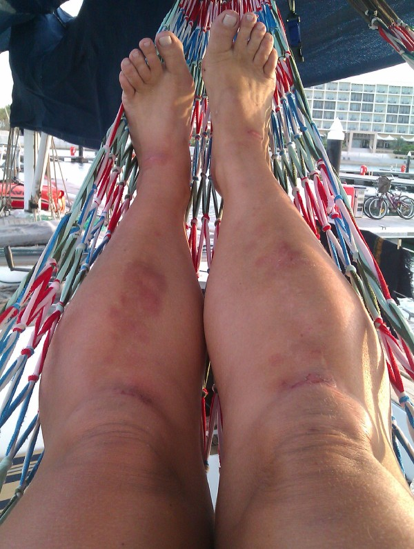 The view from my hammock  - note the grazes on knees and ankles, and the bruises on calfs!