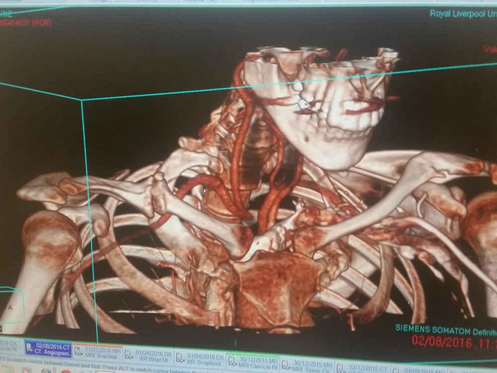 CT scan of upper body showing a clearly broken collar bone with excess growth.